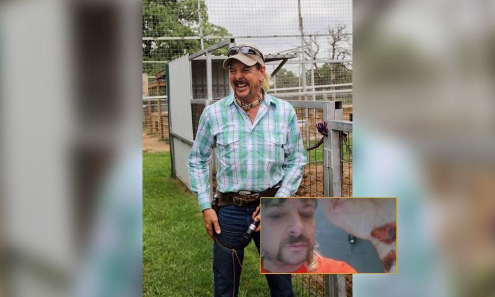 Joe Exotic: Health Update In Prison Amid Blood-Immune Disorder Treatment